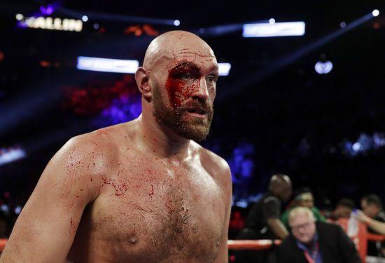 Ф'юрі потрапив до лікарні після бою з Валліном