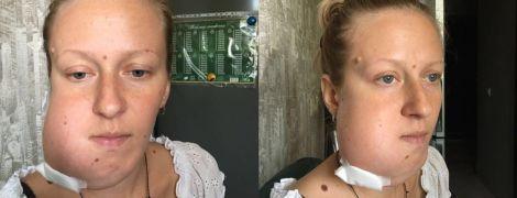 Радість від вагітності Аліні зіпсувала звістка про онкологію