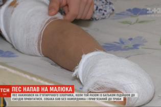 В Киеве пес набросился на пятилетнего мальчика: у ребенка разорванное колено и пятка