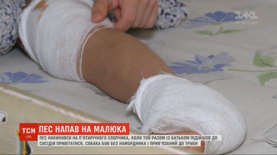 У Києві пес накинувся на п'ятирічного хлопчика: у дитини розірване коліно і п'ята