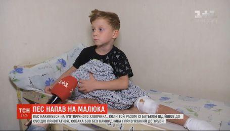 Разорванное колено и пята: в столице пятилетнего мальчика покусала соседская собака