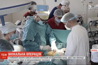 В Ковеле хирурги провели операцию на открытом сердце мужчине, у которого случился инфаркт