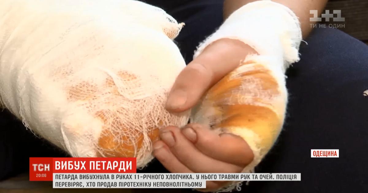 В Одесской области от взрыва петарды 11-летнему мальчику разорвало пальцы на руках и повредило глаза