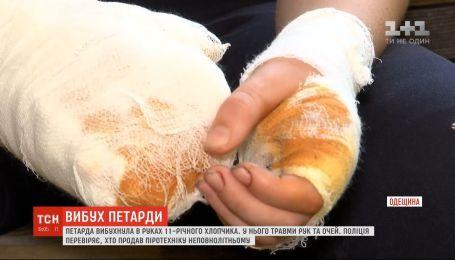 В Одесской области от взрыва петарды 11-летнему парню разорвало пальцы на руках