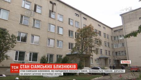 Українські медики намагаються стабілізувати стан новонароджених сіамських близнюків