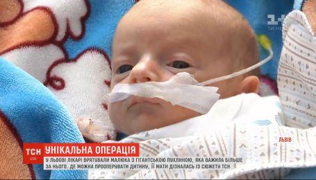Во Львове врачи спасли малыша с гигантской опухолью, которая весила больше него