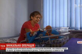 Во Львове новорожденного младенца спасли от опухоли-монстра