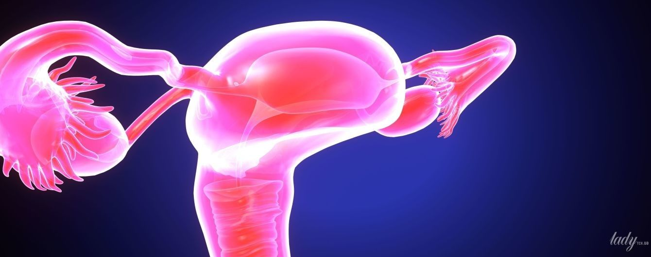 Эндометрит -воспаление слизистой оболочки матки: причины, симптомы, последствия