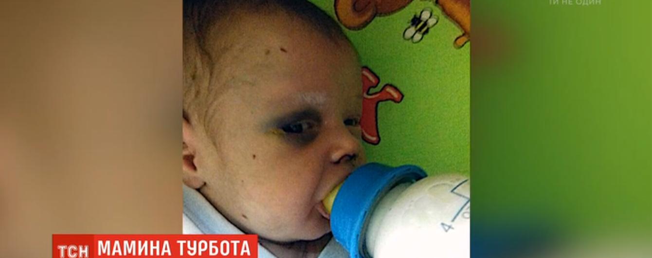 У Рівному мати залишила немовля у гуртожитку і зникла. Малюка знайшли ледь живого після її побиття