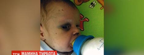 В Ровно мать оставила младенца в общежитии и исчезла. Малыша нашли едва живого после ее избиения
