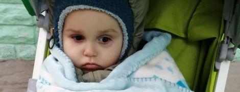Лікарі видалили Микиті пухлину з голівки і тепер потрібне протирецидивне лікування