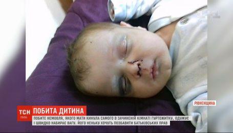 Тысячи украинцев помогают выздороветь маленькому Никите, которого избила и бросила родная мама
