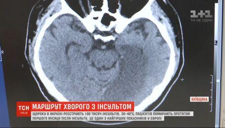Маршрут больного с подозрением на инсульт должен измениться со следующего года