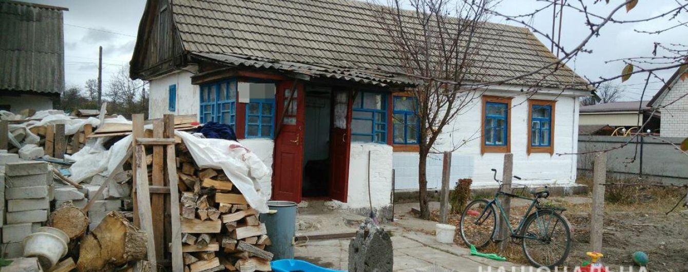 В Житомирской области 4-летний ребенок облился кипятком. Родители сутки не обращались к медикам
