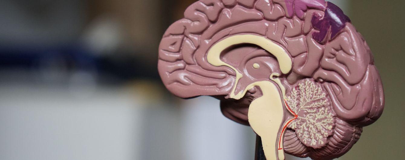 Мечты Маска сбываются: революционный материал должен помочь мозгу человека слиться с искусственным интеллектом