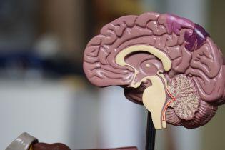 Вчені навчилися контролювати мозок за допомогою ультразвукових хвиль