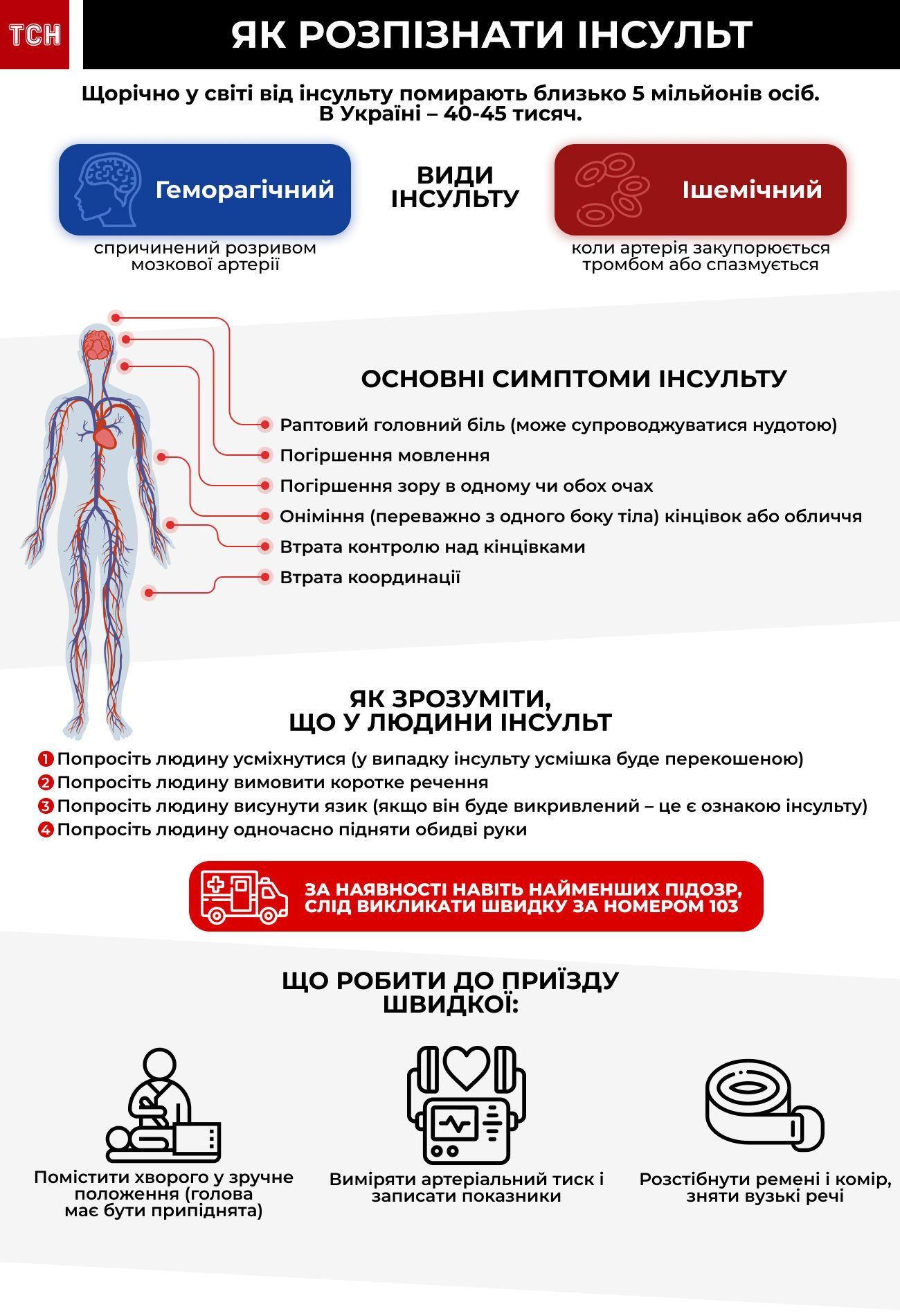 як розпізнати інсульт інфографіка 2