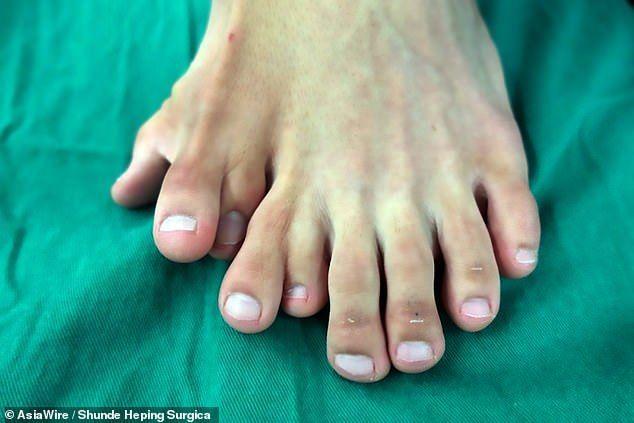 Китай пальці ноги