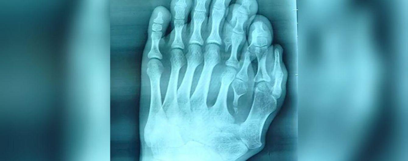У Китаї хірурги видалили зайві пальці на нозі 21-річного хлопця
