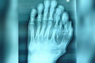 В Китае хирурги удалили лишние пальцы на ноге 21-летнего парня