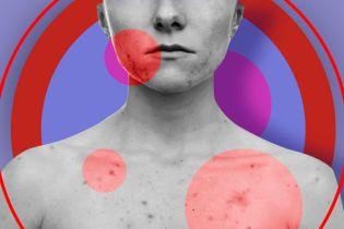 Атопічний дерматит: все, що потрібно знати