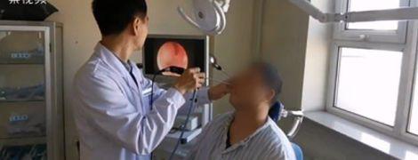 Китайські лікарі видалили врослий у ніс чоловіка зуб