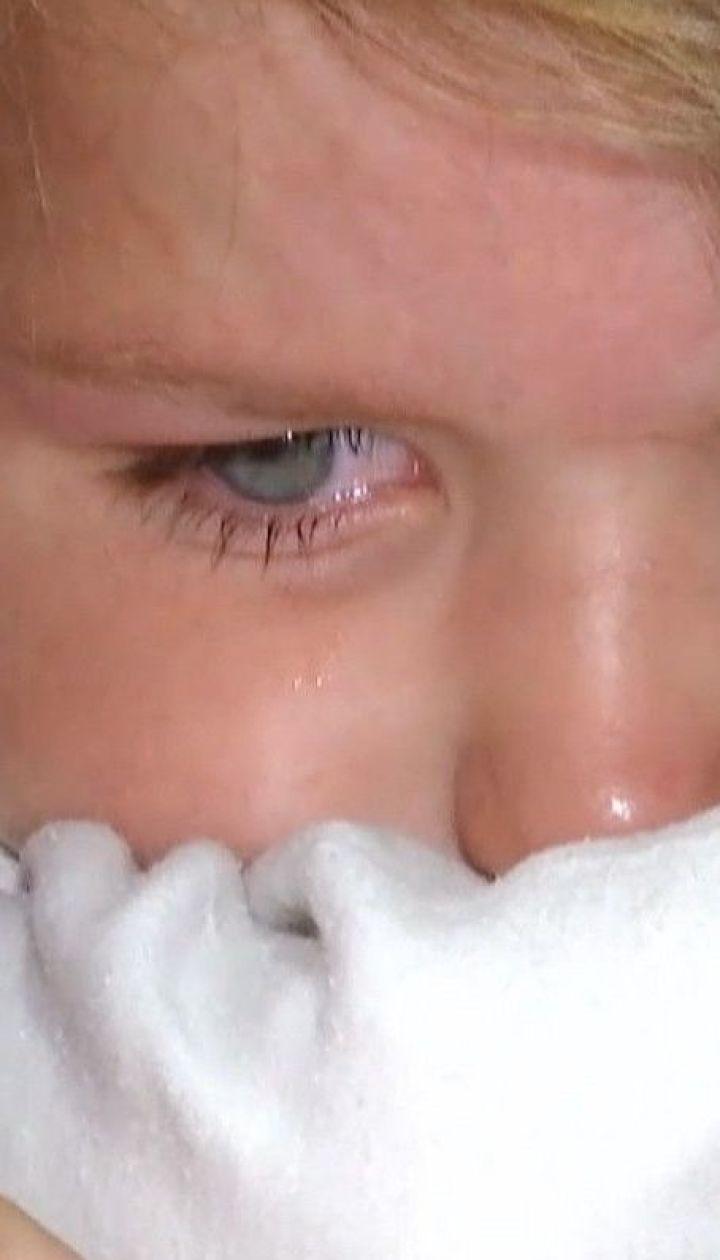В пожаре на Житомирщине едва не погибла мать и шестеро детей