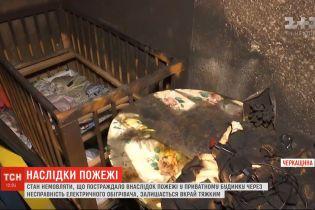 Стан 8-місячної дитини, що постраждала під час пожежі на Черкащині, залишається вкрай важким