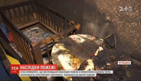Состояние 8-месячного ребенка, пострадавшего во время пожара в Черкасской области, остается крайне тяжелым