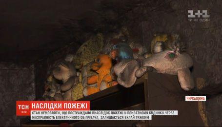 Немовля, постраждале у пожежі на Черкащині, перебуває в опіковому шоці на штучній вентиляції легенів