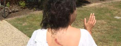 25 швів на обличчі та майже втрачене око: в Австралії кенгуру напав на жінку, яка вигулювала собаку