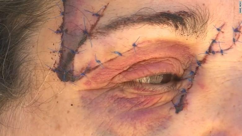 Кенгуру напав на жінку в Австралії