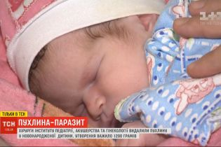 Українські хірурги видалили пухлину, що важила майже половину новонародженої дитини