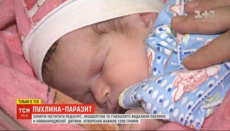 Украинские хирурги удалили опухоль, которая весила почти половину новорожденного ребенка