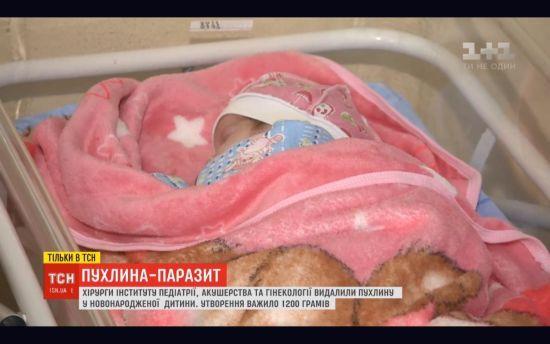 Столичні лікарі видалили новонародженій дівчинці пухлину, яка важила майже половину дитини