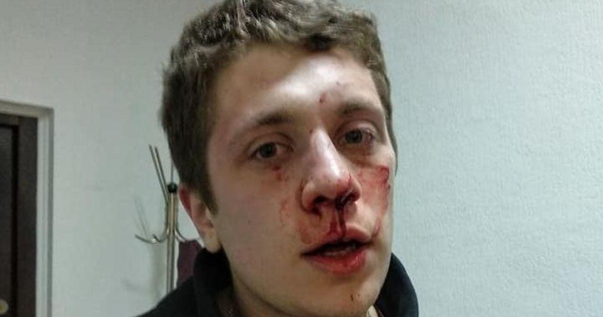 """Стало відомо, хто побив активістів у приміщенні """"Просвіти"""" у Дніпрі"""