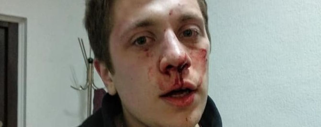 В Днепре активист заявил об избиении неизвестными в балаклавах