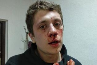 У Дніпрі активіст заявив про побиття невідомими у балаклавах