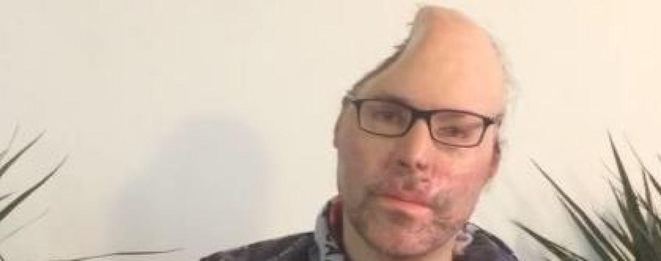 Німецький репер Dr. Knarf після вибуху в його нарколабораторії втратив половину черепа