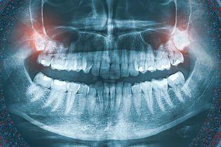 """Надоедливые зубы мудрости и уязвимые яички: шесть главных """"издевательств"""" эволюции над человечеством"""