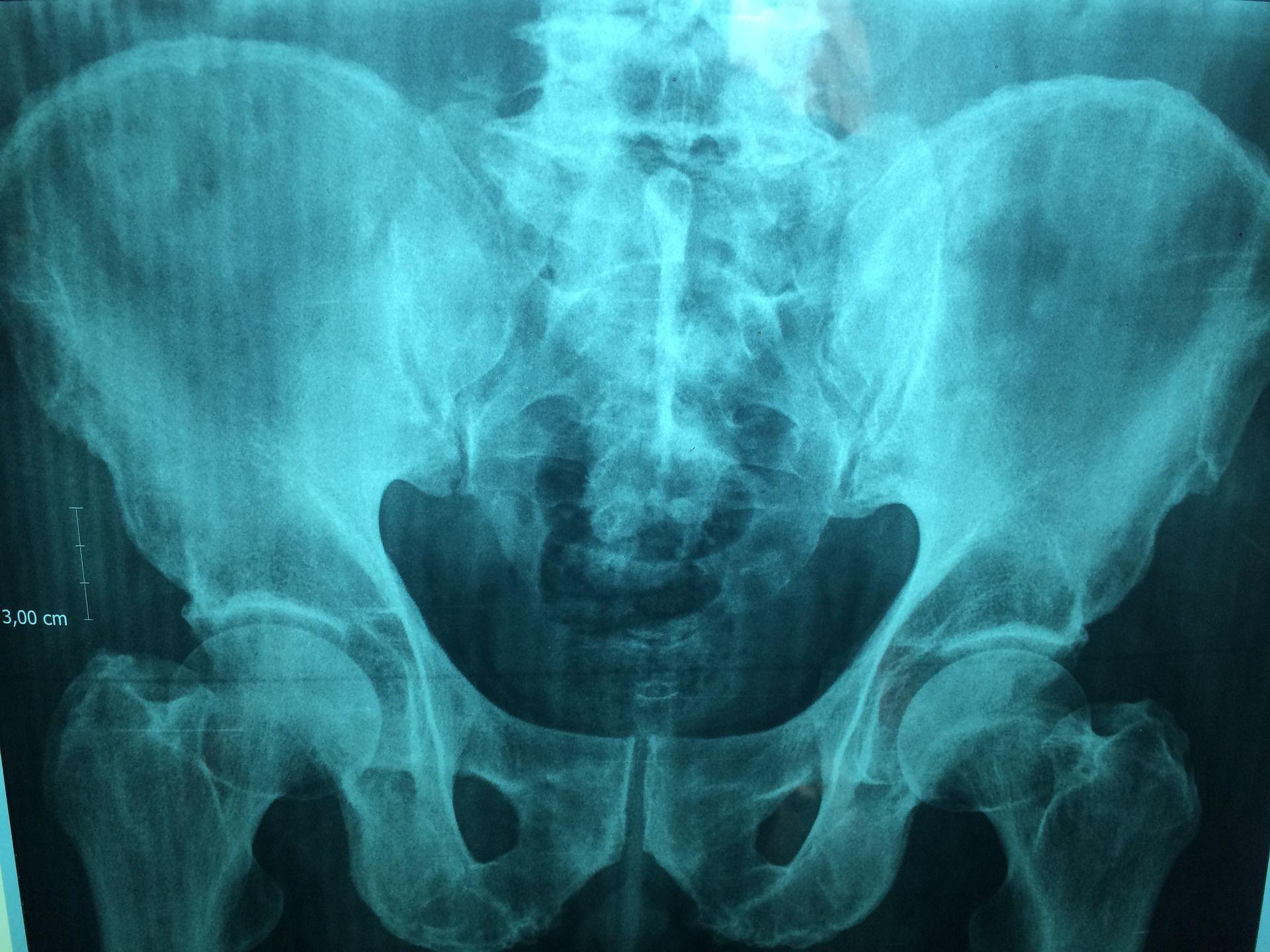 Рентген, скелет_1