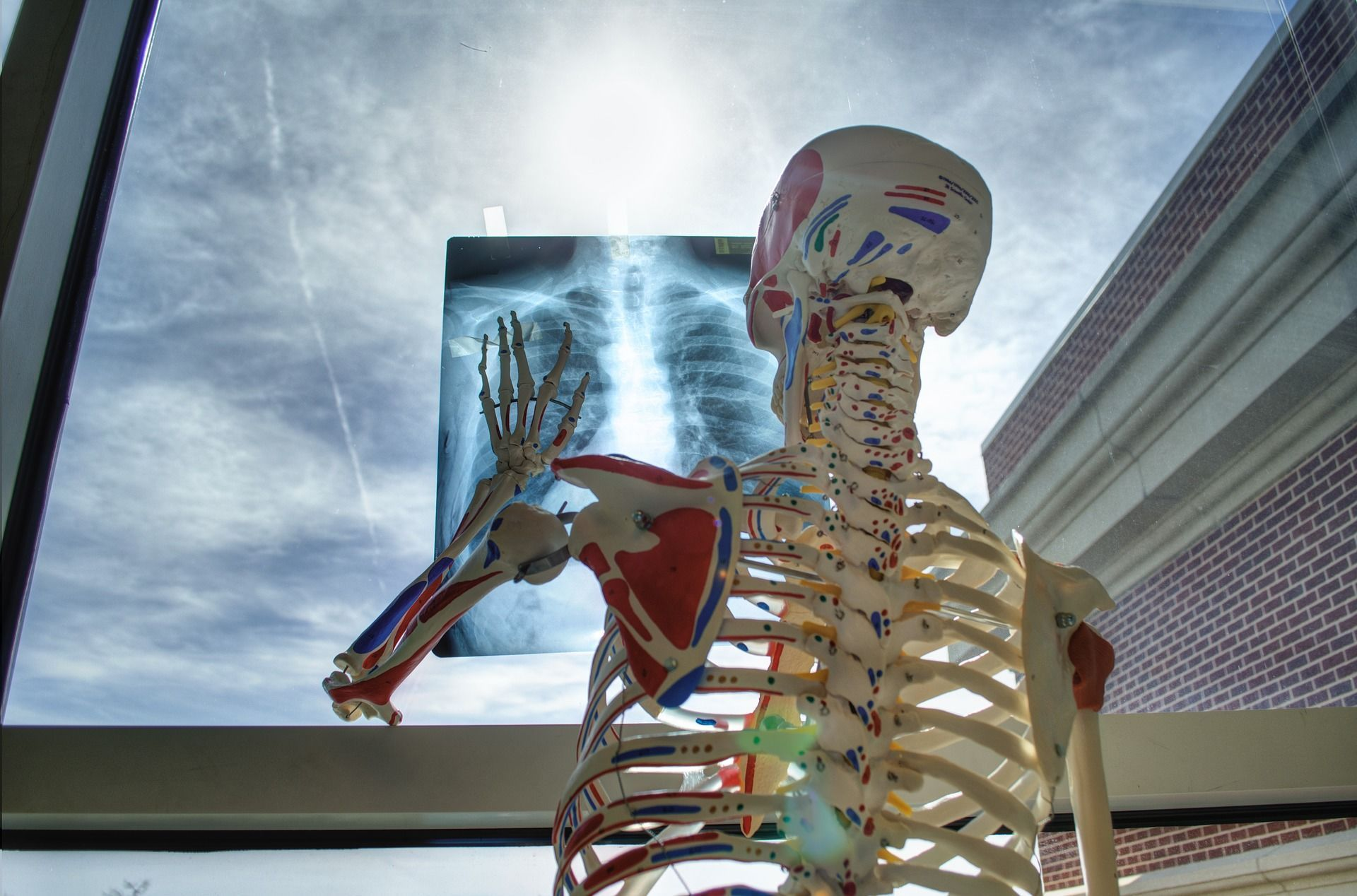 Рентген, скелет_2