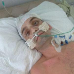 После нападения молодчиков Сергей нуждается в длительном лечении