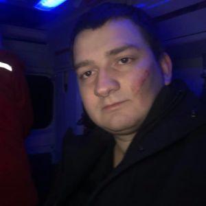 """Нардеп от """"Слуги народа"""" заявил об избиении в Сумах"""