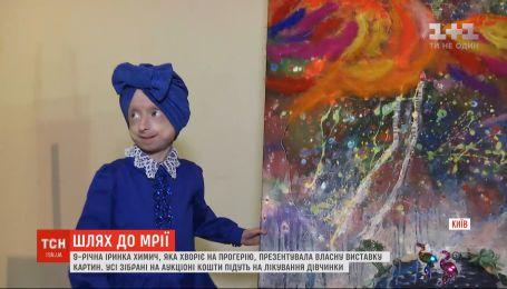 9-річна Іринка Химич, яка хворіє на прогерію, презентувала власну виставку картин