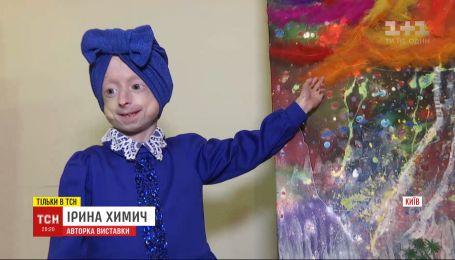 Дівчинка з унікальною хворобою малює картини, аби зібрати кошти собі на лікування