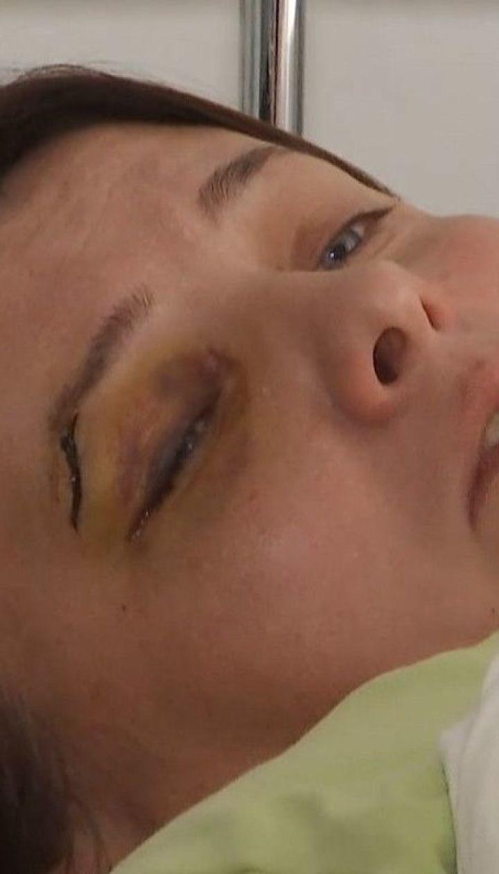 Урятуватися від тирана: поліція на Тернопільщині ігнорує регулярні побиття жінки її колишнім чоловіком