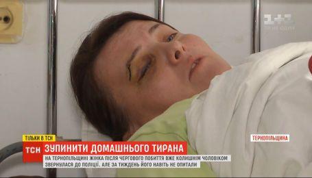 Спастись от тирана: полиция на Тернопольщине игнорирует регулярные избиения женщины ее бывшим мужем