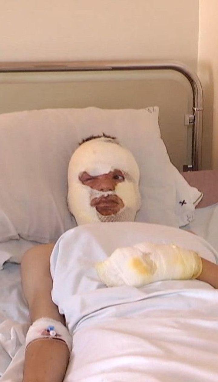 Неравнодушные сдают кровь для 8 подростков, которые получили глубокие ожоги вследствие взрыва газа
