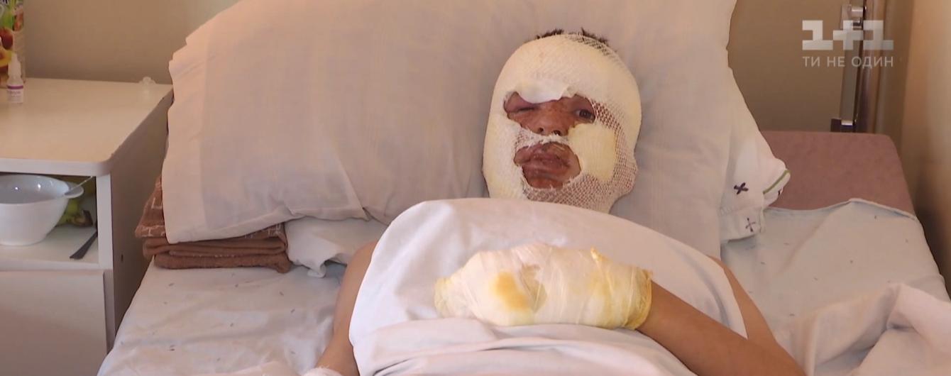 Состояние пострадавших мальчиков во время взрыва в сельском клубе на Тернопольщине улучшилось - медики